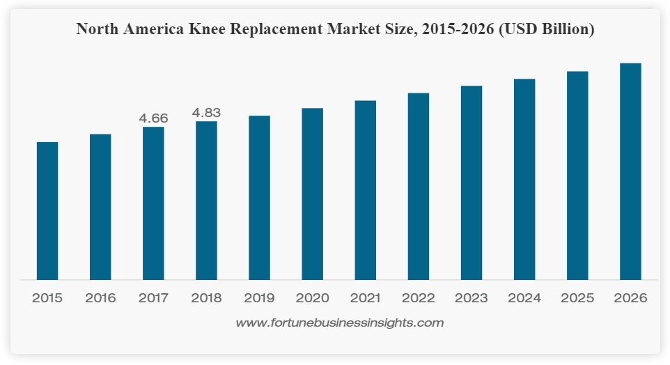 North American knee replacement market